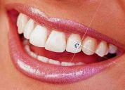 Ortodoncia en el sur de bogota, odontologos universidad nacional